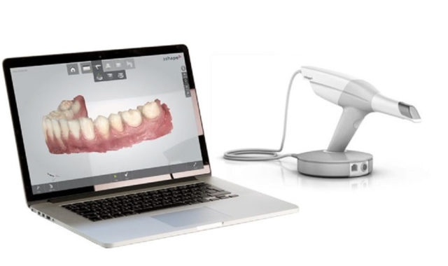 scanner digitale 3D