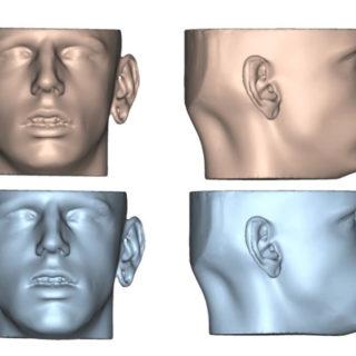 trattamenti ortodontico chirurgici