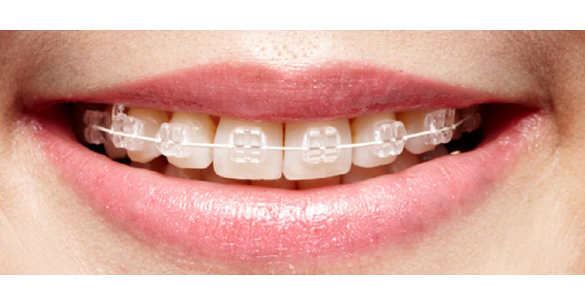 Apparecchi ortodontici fissi con brackets in ceramica